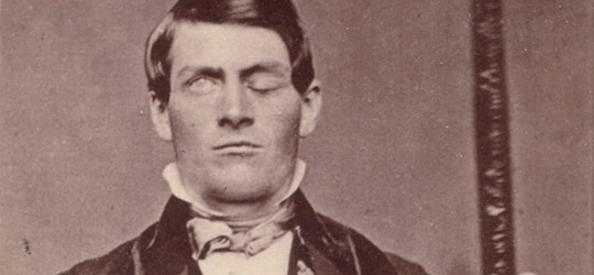 Phineas P. Gage